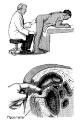 массаж простатита